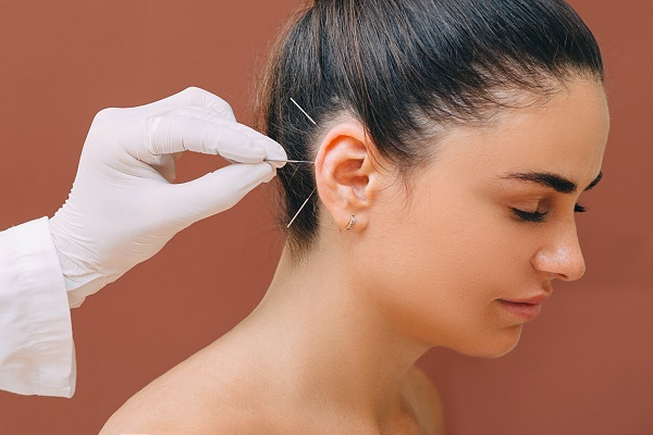 Conheça os benefícios da acupuntura para a saúde do corpo e da mente