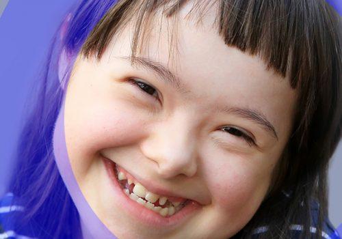 Entenda como a Fisioterapia ajuda no desenvolvimento motor da criança com Síndrome de Down